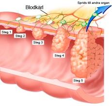 tecken på cancer i ändtarmen